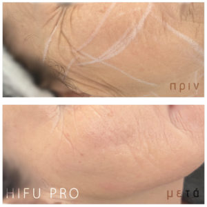 hifu before after
